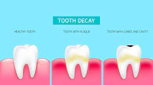 The Five Stages of Dental Decay - TruBlu Dentistry